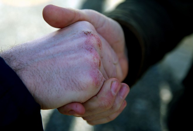 Fianna Fail candidate Charlie McConalogue's knuckles grazed from hand shaking on his canvass of the newly enlarged Donegal constituency. He was pictured meeting farmers at Milford Livestock Mart on Wednesday.